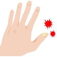 腫れ 指 ささくれ