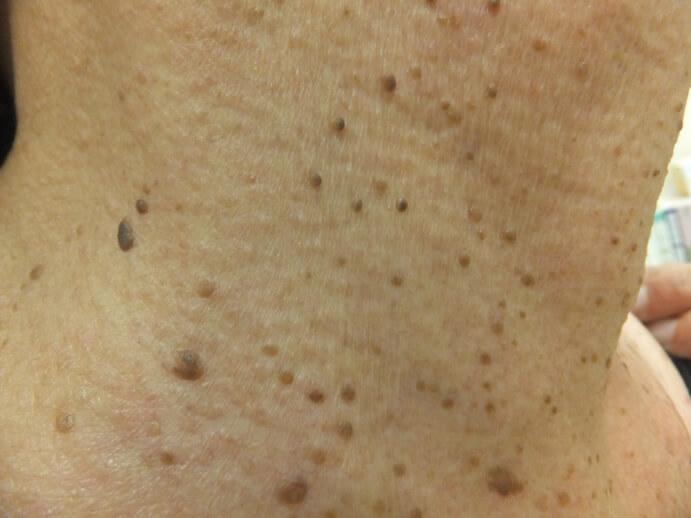 血管 腫 毛細 拡張 性 肉芽