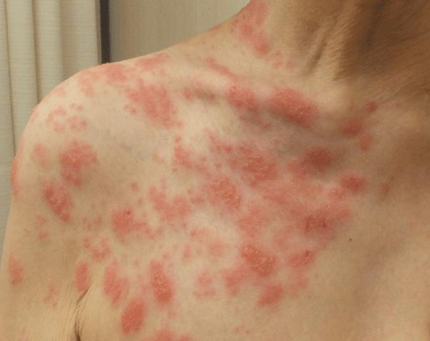 帯状 疱疹 かゆみ だけ