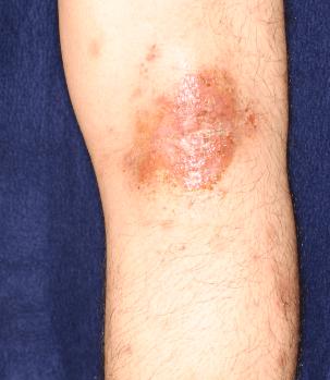 お風呂上がり 赤い湿疹