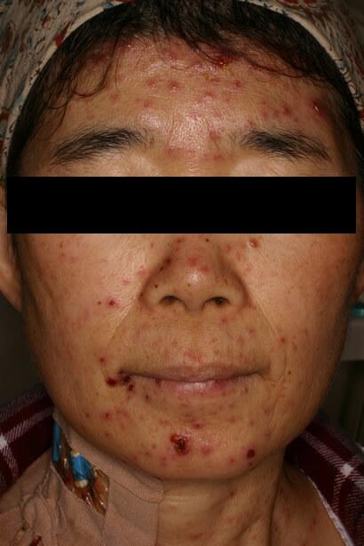 ウイルス性発疹症の症状 治療方法について - 渋谷駅前おおしま皮膚科